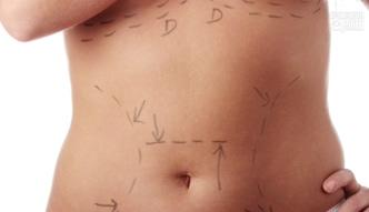 Abdominoplastyka - plastyka brzucha [Specjalista radzi]