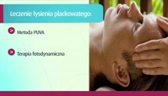 Alternatywy leczenia DCP