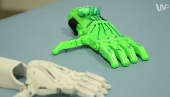 Ręka z drukarki 3D szansą na lepsze życie
