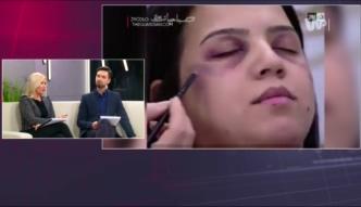 Makijaż, dzięki któremu zatuszujesz siniaki po pobiciu przez męża. Kobiety są oburzone