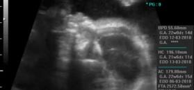 Płód w 17 tygodniu ciąży