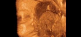Płód w 27 tygodniu ciąży