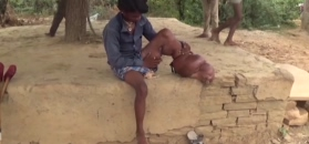 Choroba umożliwia mu normalne życie. Noga nastolatka waży 24 kg