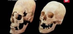 Wydłużone czaszki z Bawarii. Naukowcy wreszcie rozwiązali ich zagadkę