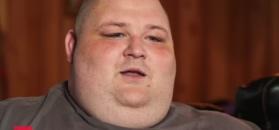 """Po amputacji stopy zmaga się z ogromną nadwagą. """"Podjąłem niewłaściwą decyzję"""""""