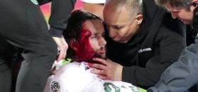 #dziejesiewsporcie: Koszmarne zderzenie w meczu Ligue 1. Neven Subotić zalał się krwią