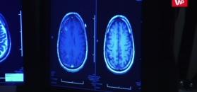 Alzheimer chorobą zakaźną. Zaskakująca hipoteza naukowców