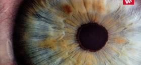 Przyszła do lekarza z bólem oka. Zrobiła to zecydowanie za późno