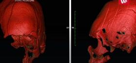 Makabryczne odkrycie. Ich czaszki jasno wskazują, kim byli